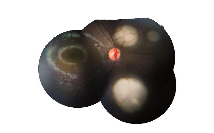 clasificación del retinoblastoma