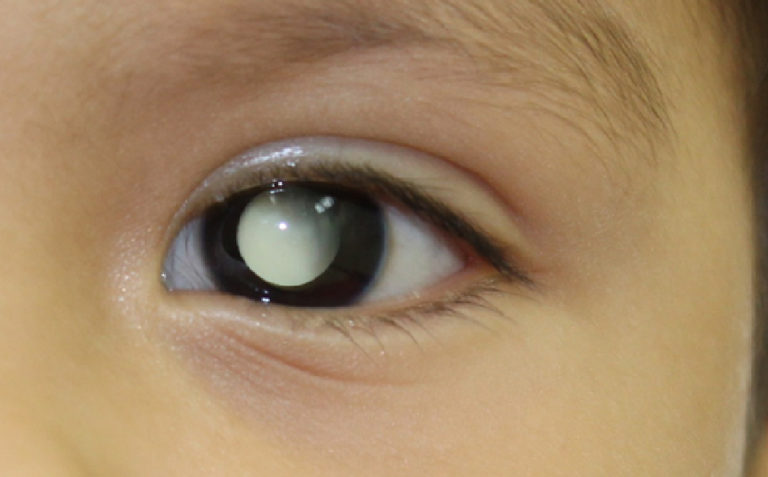 el retinoblastoma