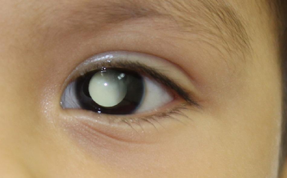 Signos de tumores en los ojos